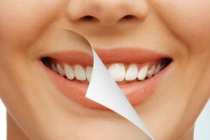 セラミックの差し歯で歯並びの改善が出来る