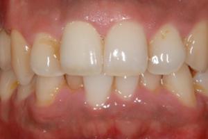 セラミックの差し歯で部分的な歯並びの改善が行える