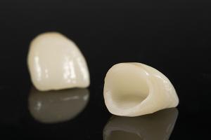 セラミックの差し歯の種類