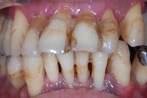 歯周病の急性症状で歯茎が腫れて痛くなる