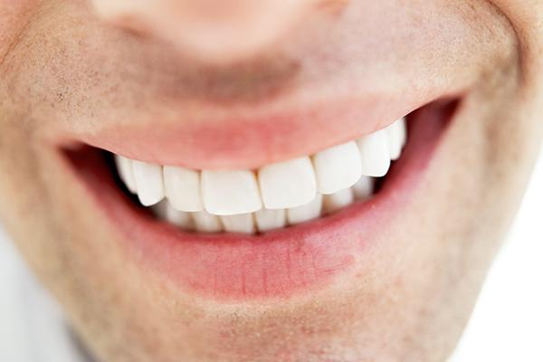 差し歯の特徴