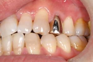 小臼歯には金属を避けることができる