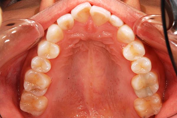 出っ歯の例