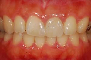 セラミックの差し歯は汚れがつきにくい