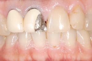 セラミックは歯と歯茎を黒くしない