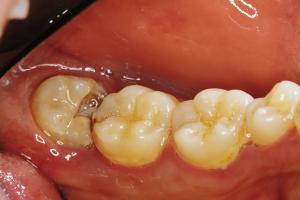 親知らずの周りの汚れが取りきれずに歯茎が腫れる
