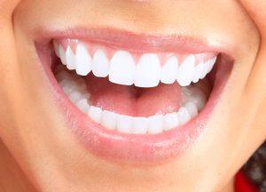 口の中から見る歯ぎしりのサイン