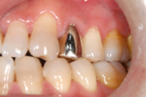 銀歯(金銀パラジウム)