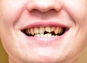 噛み合わせが原因で歯ぎしり