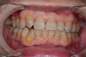テトラサイクリンの歯
