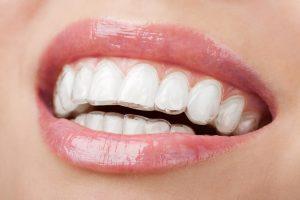 テトラサイクリンの歯のホワイトニング