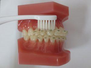 装置と歯ぐきの間装置
