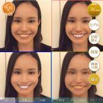 歯のホワイトニングシミュレーション