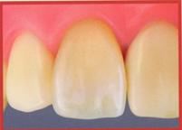 セラミックの差し歯(表)