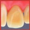 セラミックの差し歯(裏)