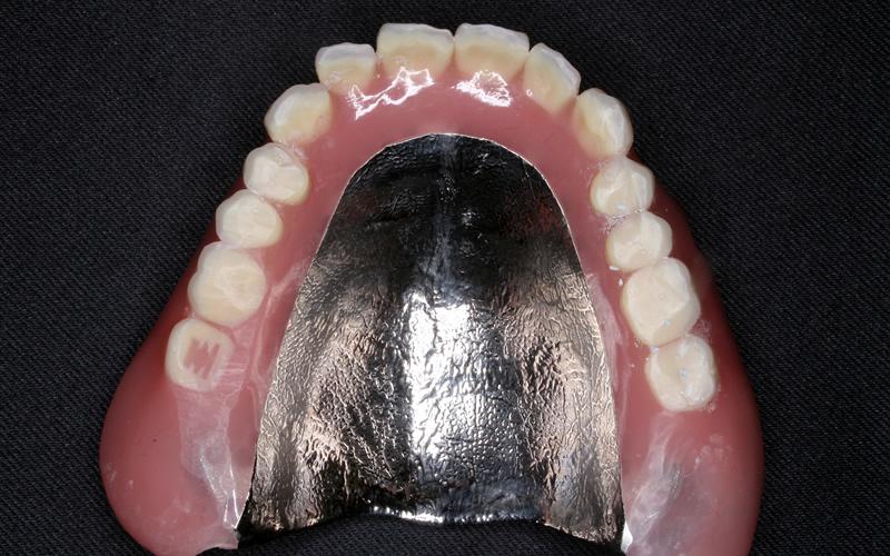 えーーー!この入れ歯安定剤は、金属の入れ歯に使用してはいけないの?