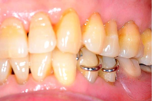 入れ歯・インプラントの見た目