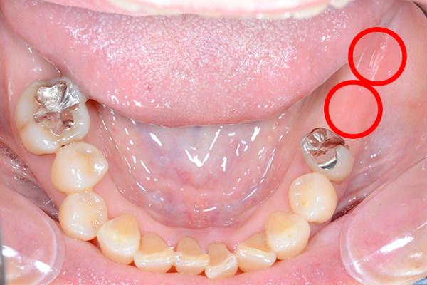 どんな時が、入れ歯かインプラントか?
