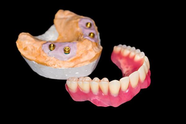 入れ歯を、寝る際につけたままでも良い方は?