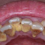 歯石の原因は?