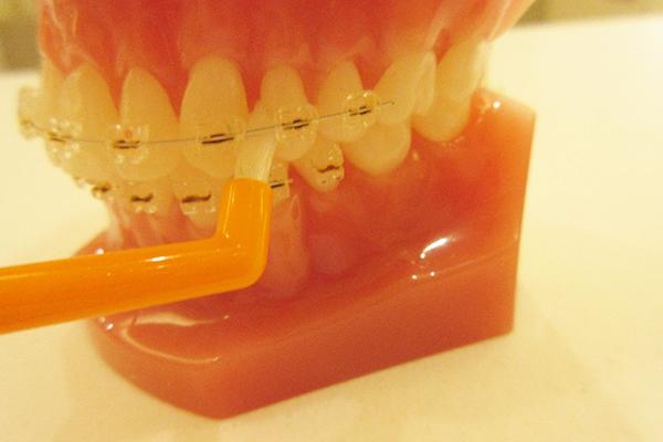 歯と器具の間にいれてお掃除