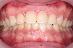 渋谷の矯正歯科で部分矯正の体験記